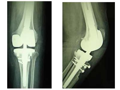ginocchio protesica