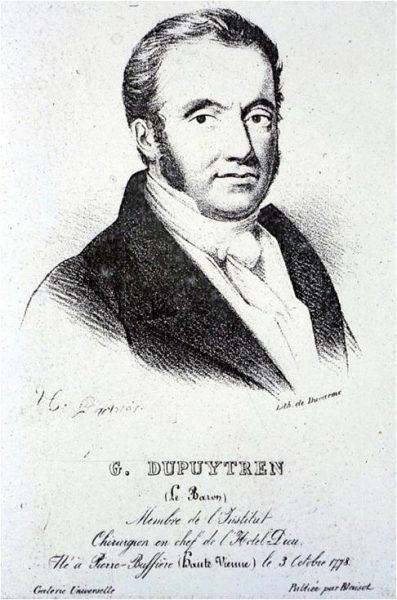 Dupuytren1